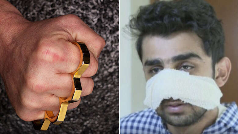 Man smashes Pakistani students face with brass knuckles