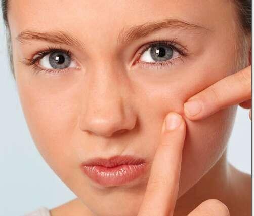 The chickpea pimple cure - News | Khaleej Times