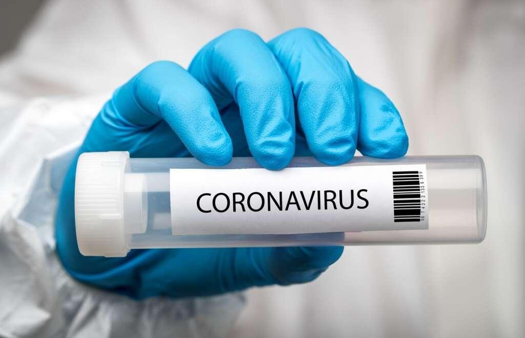 Donald trump, deal, 150 million, rapid, covid-19, coronavirus, tests