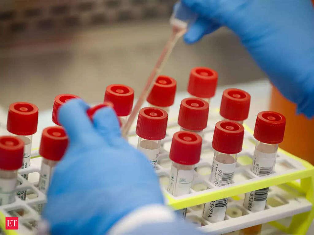 DHA bans rapid viral test for coronavirus – News