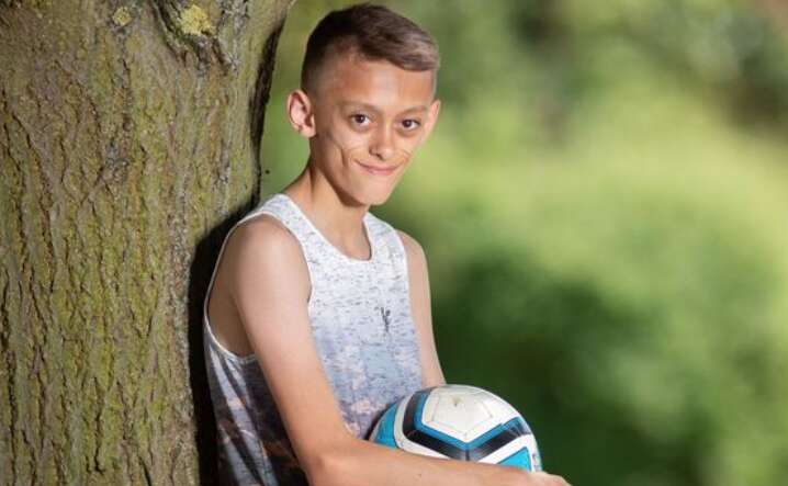 11-year-old boys looks like70 because of mystery virus