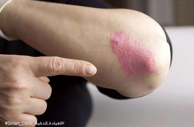 Dubai experts urge early treatment of psoriasis - News