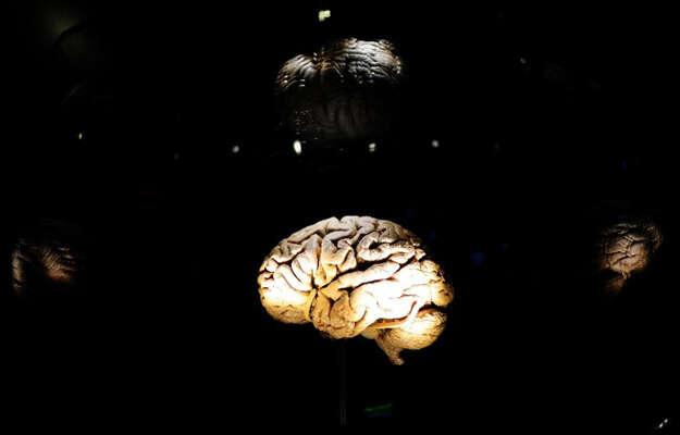 French firm announces multiple sclerosis drug breakthrough
