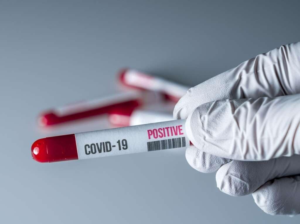 abu dhabi, covid-19, coronavirus, rapid testing