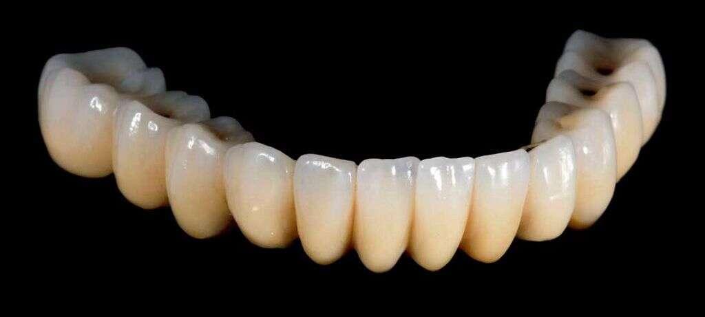 The dental framework was created in cobalt chrome last Thursday.