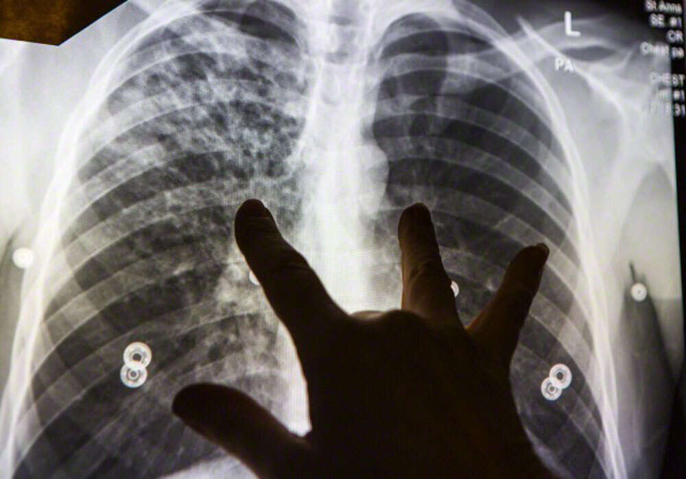 Lifting ban after pneumonia scars mistaken for TB - News
