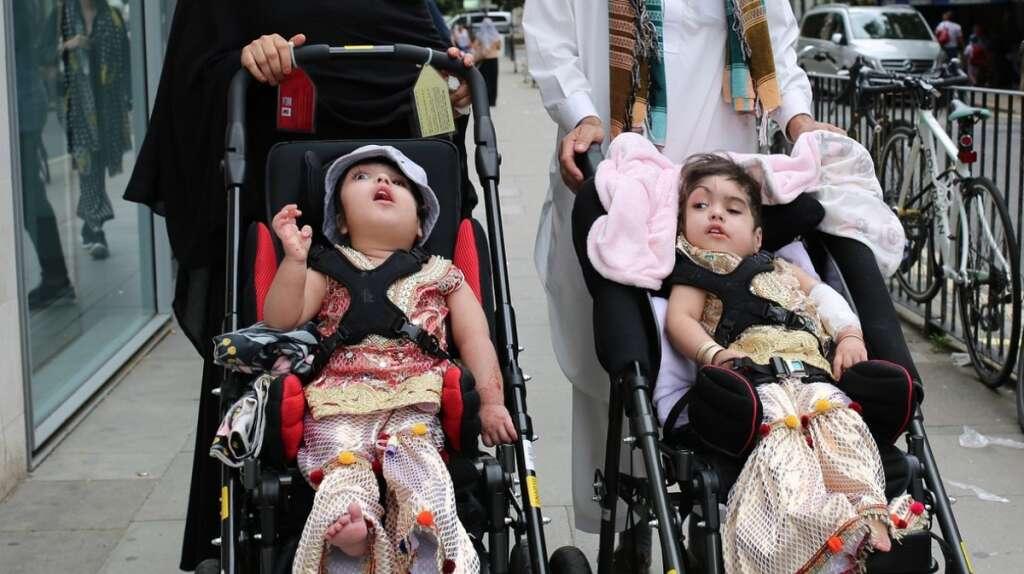 Pakistani conjoined twins, Great Ormond Street Hospital, Safa and Marwa Ullah