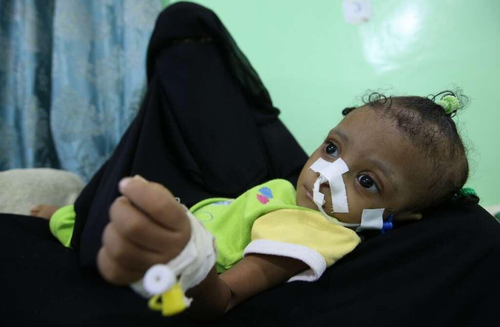 Kids bear brunt of Yemen conflict