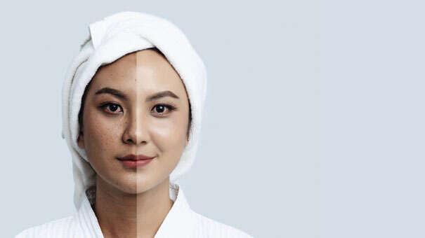 Reduce pigmentation naturally