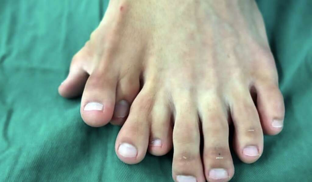 nine toes, china man, chinese, life changing, surgery, one foot