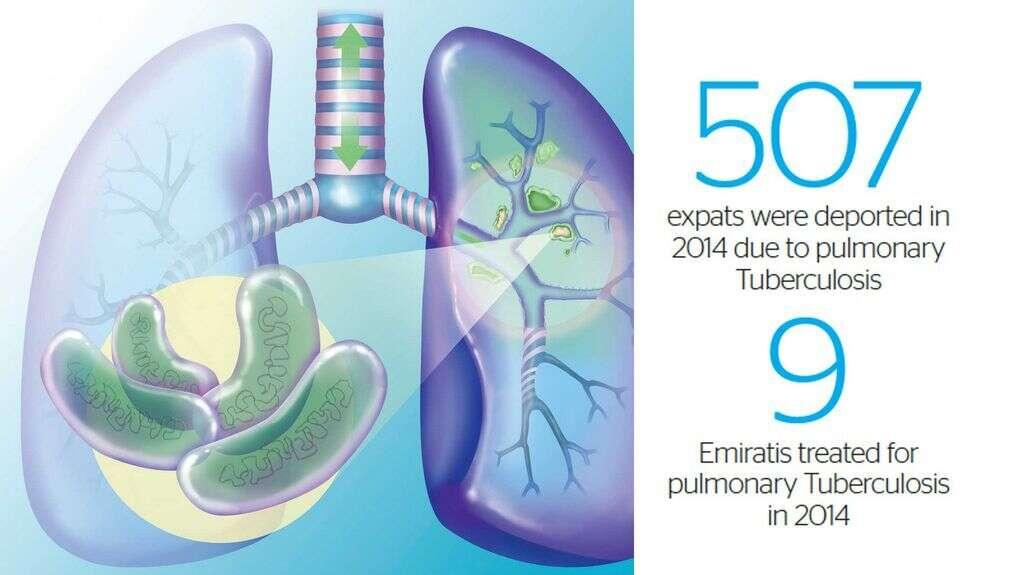 UAE residents seek clarity on TB policy - Khaleej Times